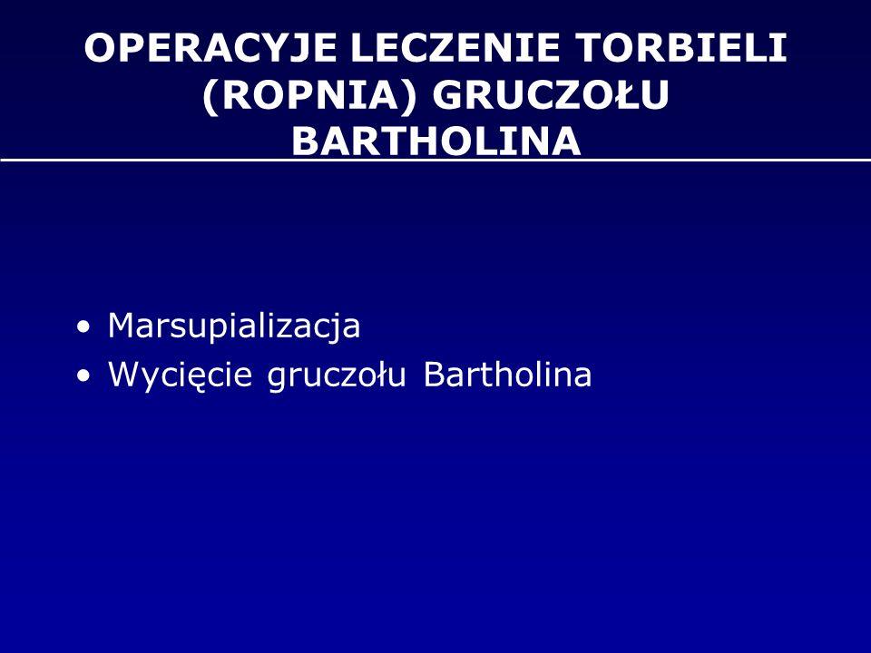 OPERACYJE LECZENIE TORBIELI (ROPNIA) GRUCZOŁU BARTHOLINA Marsupializacja Wycięcie gruczołu Bartholina