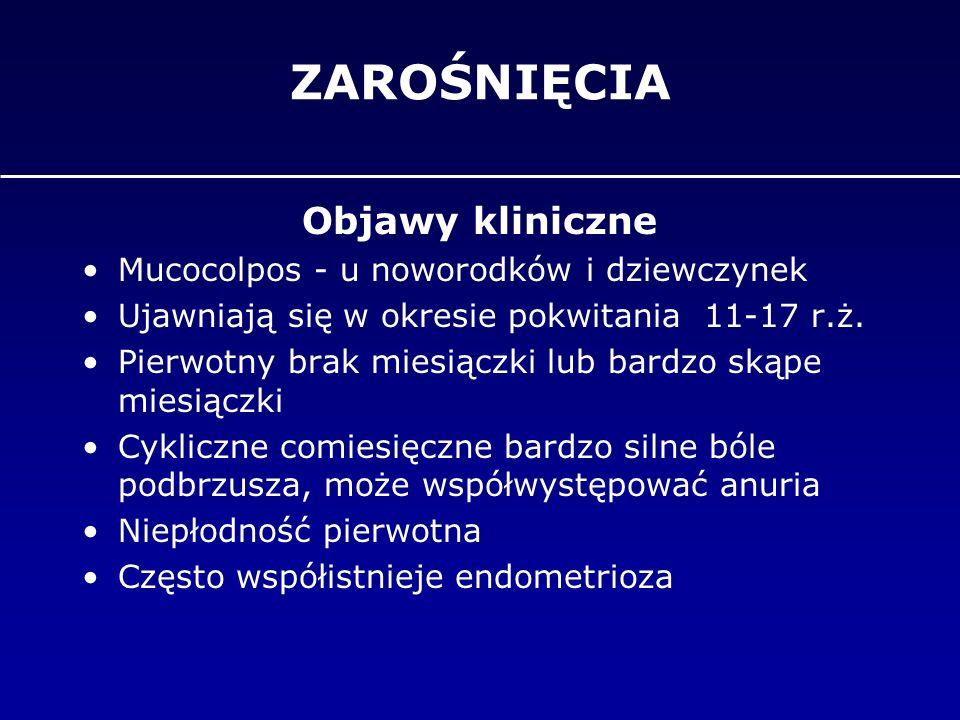 ZAROŚNIĘCIA Objawy kliniczne Mucocolpos - u noworodków i dziewczynek Ujawniają się w okresie pokwitania 11-17 r.ż. Pierwotny brak miesiączki lub bardz