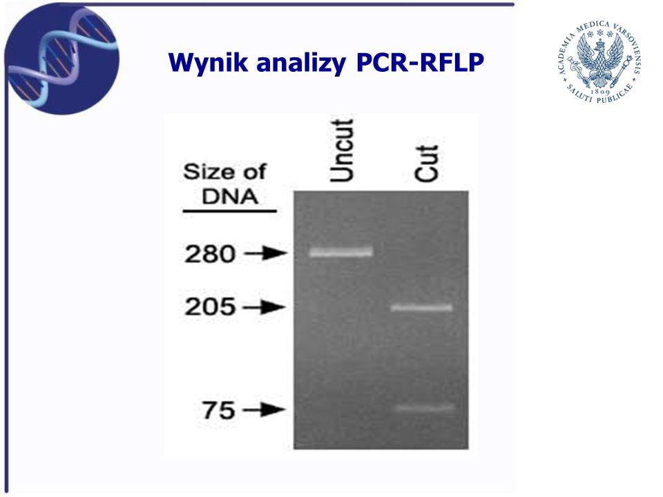 Wynik analizy PCR-RFLP