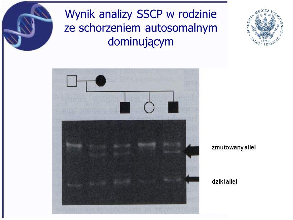 Wynik analizy SSCP w rodzinie ze schorzeniem autosomalnym dominującym zmutowany allel dziki allel