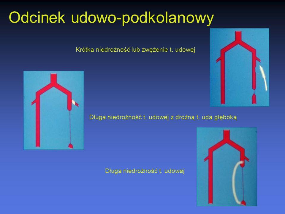 Odcinek udowo-podkolanowy Krótka niedrożność lub zwężenie t. udowej Długa niedrożność t. udowej z drożną t. uda głęboką Długa niedrożność t. udowej