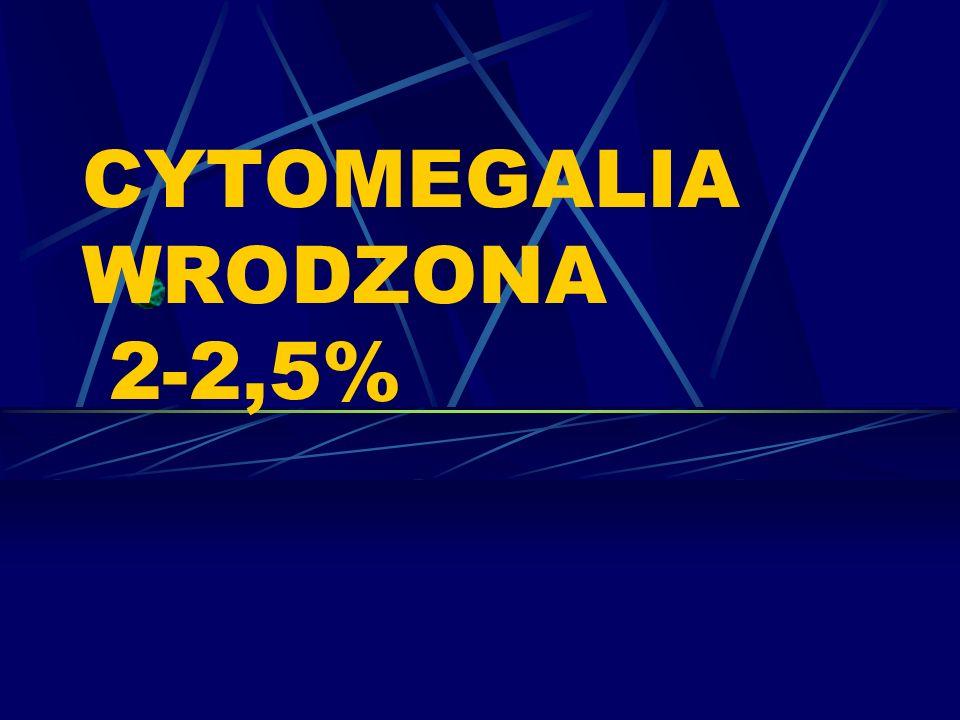 CYTOMEGALIA WRODZONA 2-2,5%