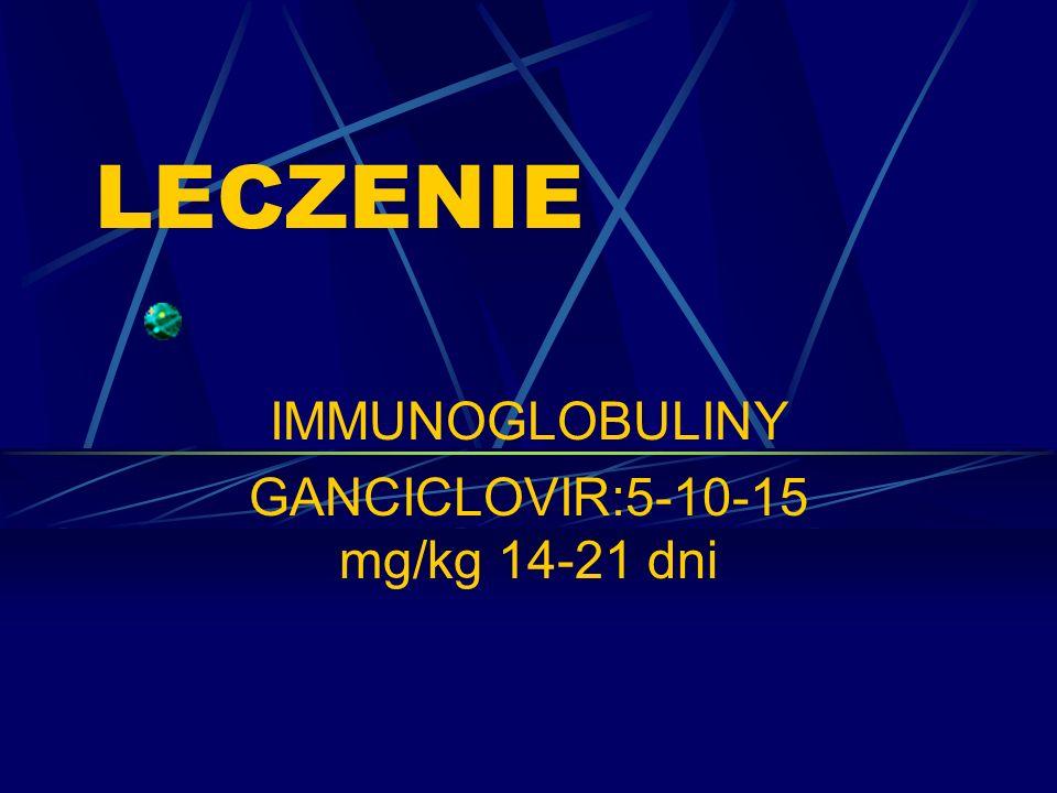 LECZENIE IMMUNOGLOBULINY GANCICLOVIR:5-10-15 mg/kg 14-21 dni