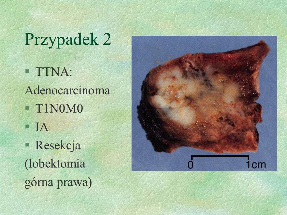 Przypadek 2 §TTNA: Adenocarcinoma §T1N0M0 §IA §Resekcja (lobektomia górna prawa)
