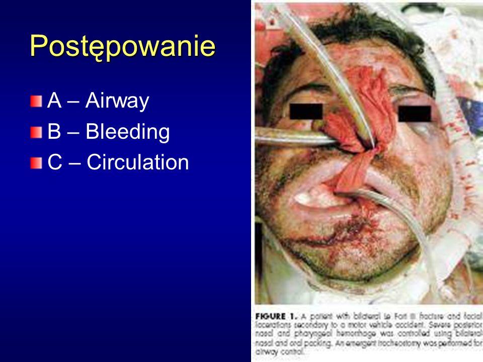 Postępowanie A – Airway B – Bleeding C – Circulation