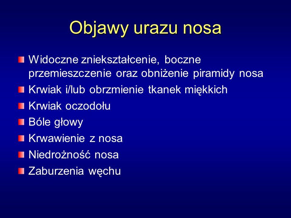 Objawy urazu nosa Widoczne zniekształcenie, boczne przemieszczenie oraz obniżenie piramidy nosa Krwiak i/lub obrzmienie tkanek miękkich Krwiak oczodołu Bóle głowy Krwawienie z nosa Niedrożność nosa Zaburzenia węchu