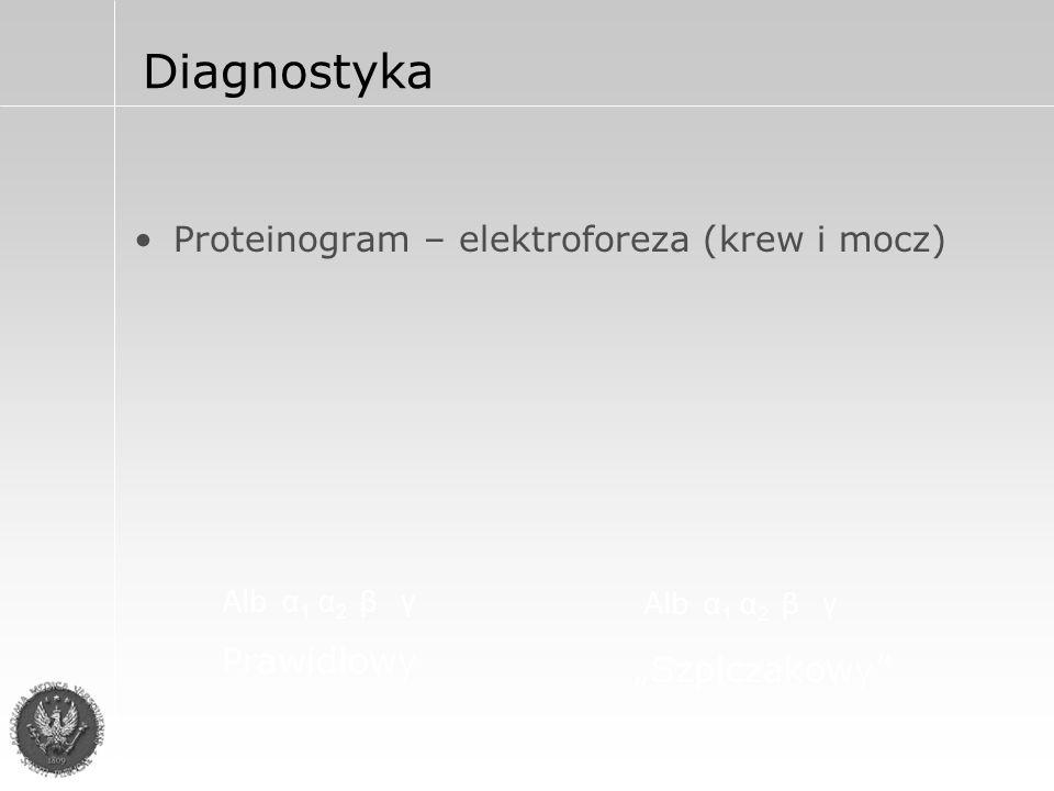 """Diagnostyka Proteinogram – elektroforeza (krew i mocz) Alb α 1 α 2 β γ Prawidłowy Alb α 1 α 2 β γ """"Szpiczakowy"""