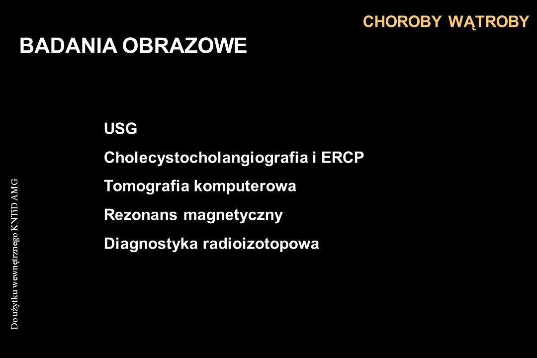 Do użytku wewnętrznego KNTiD AMG BADANIA OBRAZOWE USG Cholecystocholangiografia i ERCP Tomografia komputerowa Rezonans magnetyczny Diagnostyka radioiz