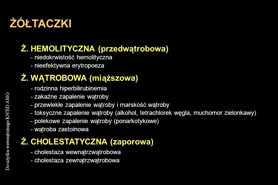 Do użytku wewnętrznego KNTiD AMG ŻÓŁTACZKI Ż. HEMOLITYCZNA (przedwątrobowa) - niedokrwistość hemolityczna - nieefektywna erytropoeza Ż. WĄTROBOWA (mią