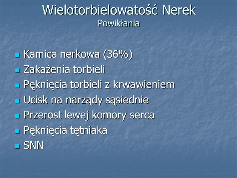 Wielotorbielowatość Nerek Powikłania Kamica nerkowa (36%) Kamica nerkowa (36%) Zakażenia torbieli Zakażenia torbieli Pęknięcia torbieli z krwawieniem