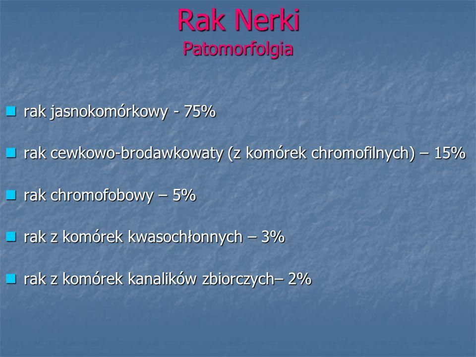 Rak Nerki Patomorfolgia rak jasnokomórkowy - 75% rak jasnokomórkowy - 75% rak cewkowo-brodawkowaty (z komórek chromofilnych) – 15% rak cewkowo-brodawk