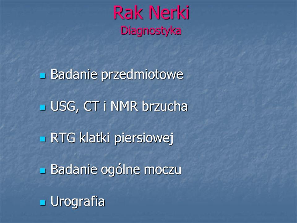 Rak Nerki Diagnostyka Badanie przedmiotowe Badanie przedmiotowe USG, CT i NMR brzucha USG, CT i NMR brzucha RTG klatki piersiowej RTG klatki piersiowe