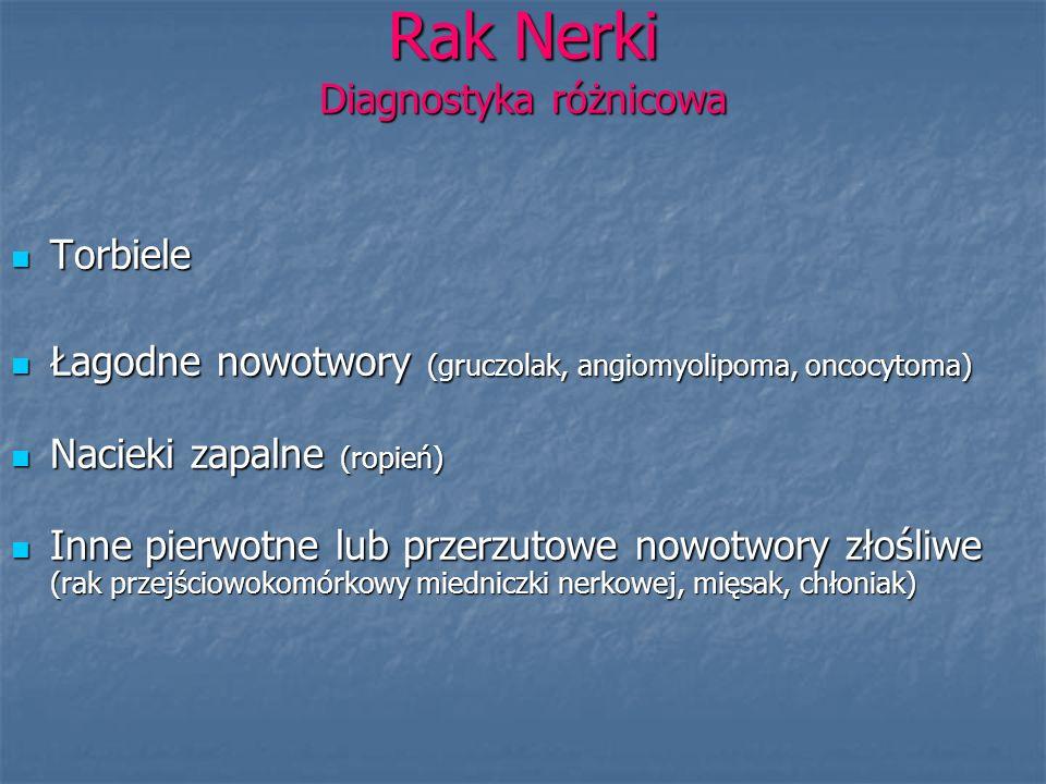 Rak Nerki Diagnostyka różnicowa Torbiele Torbiele Łagodne nowotwory (gruczolak, angiomyolipoma, oncocytoma) Łagodne nowotwory (gruczolak, angiomyolipo