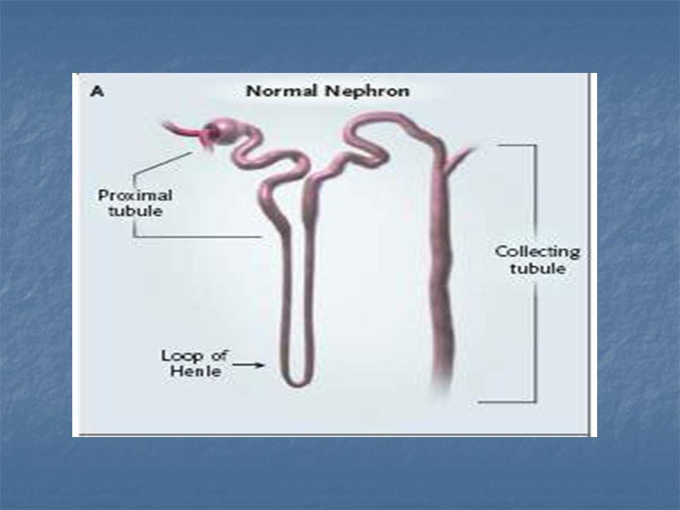 Wielotorbielowatość Nerek leczenie Celem leczenia jest spowolnienie tempa rozwoju choroby oraz zminimalizowanie objawów - leczenie nadciśnienia tętniczego - leczenie nadciśnienia tętniczego - leczenie zakażenia nerek - leczenie zakażenia nerek - leczenie bólu - leczenie bólu