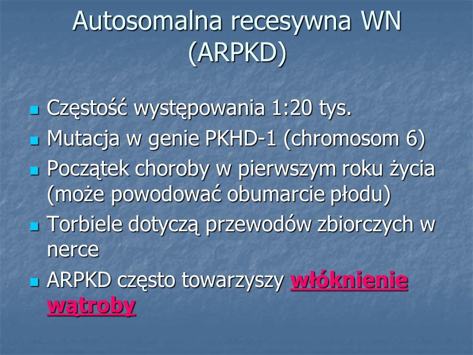 Autosomalna recesywna WN (ARPKD) Częstość występowania 1:20 tys. Częstość występowania 1:20 tys. Mutacja w genie PKHD-1 (chromosom 6) Mutacja w genie