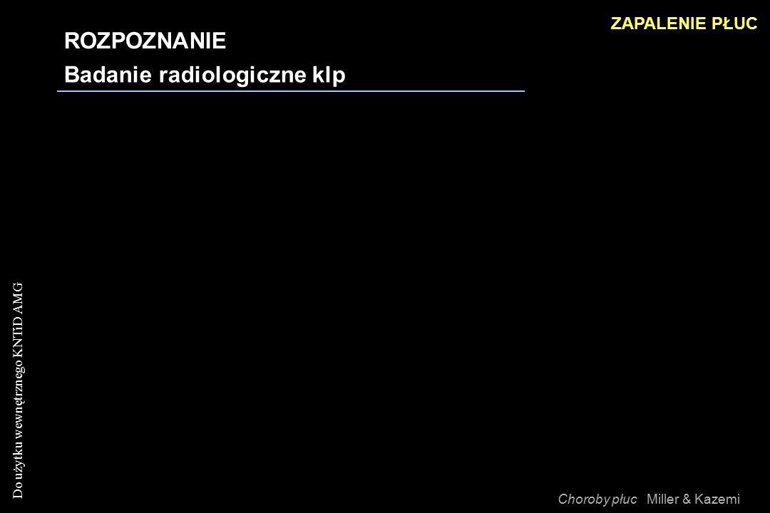 Do użytku wewnętrznego KNTiD AMG ROZPOZNANIE Badanie radiologiczne klp ZAPALENIE PŁUC Choroby płuc Miller & Kazemi