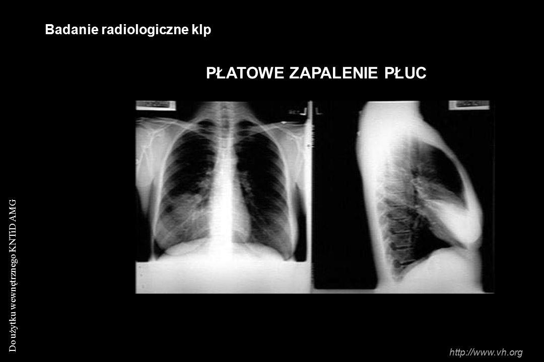 Do użytku wewnętrznego KNTiD AMG Badanie radiologiczne klp PŁATOWE ZAPALENIE PŁUC http://www.vh.org