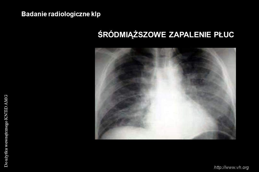 Do użytku wewnętrznego KNTiD AMG Badanie radiologiczne klp ŚRÓDMIĄŻSZOWE ZAPALENIE PŁUC http://www.vh.org