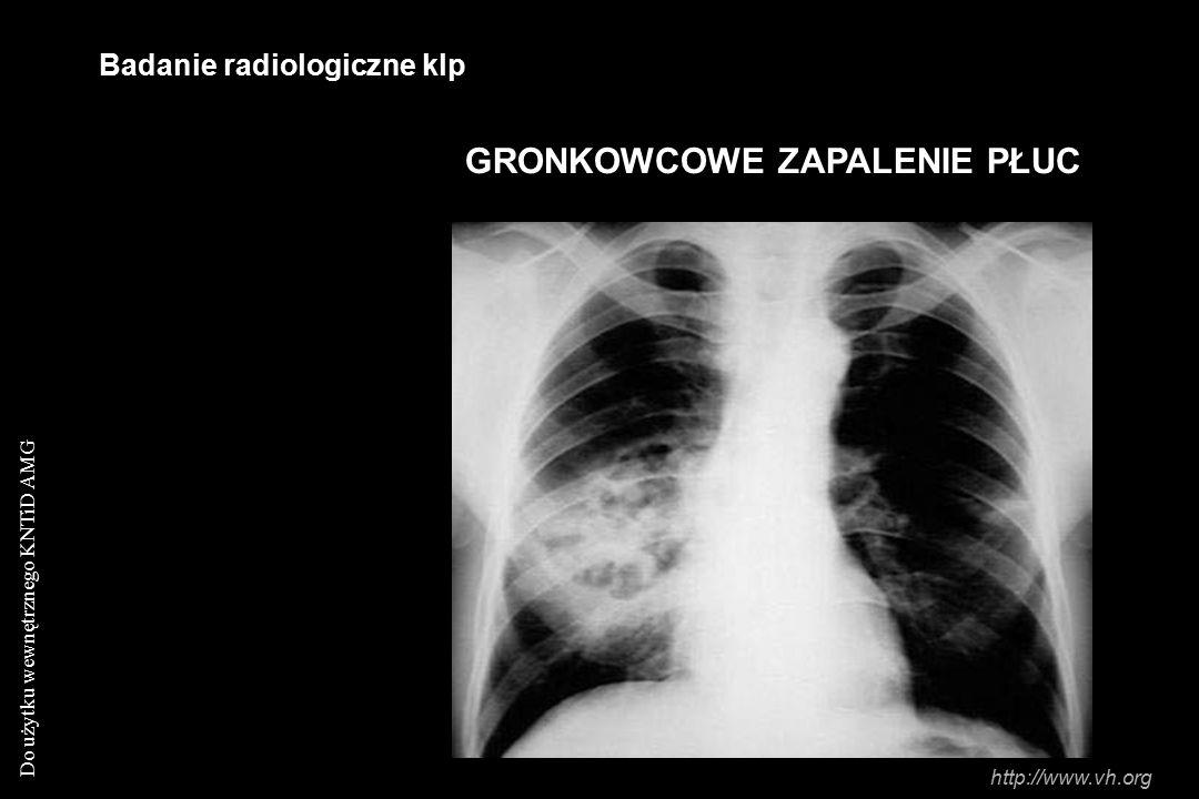 Do użytku wewnętrznego KNTiD AMG Badanie radiologiczne klp GRONKOWCOWE ZAPALENIE PŁUC http://www.vh.org
