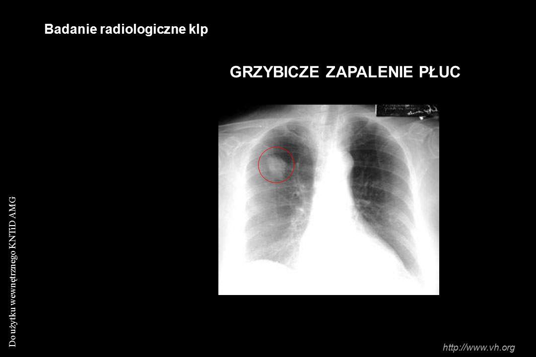 Do użytku wewnętrznego KNTiD AMG Badanie radiologiczne klp GRZYBICZE ZAPALENIE PŁUC http://www.vh.org