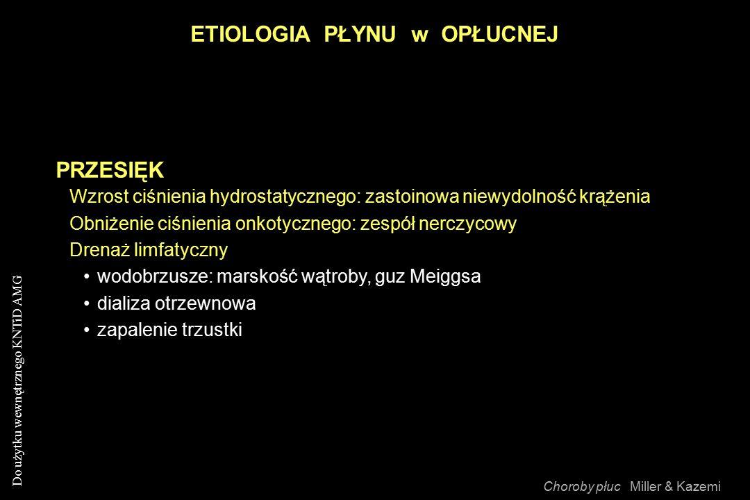 Do użytku wewnętrznego KNTiD AMG ETIOLOGIA PŁYNU w OPŁUCNEJ Choroby płuc Miller & Kazemi PRZESIĘK Wzrost ciśnienia hydrostatycznego: zastoinowa niewydolność krążenia Obniżenie ciśnienia onkotycznego: zespół nerczycowy Drenaż limfatyczny wodobrzusze: marskość wątroby, guz Meiggsa dializa otrzewnowa zapalenie trzustki