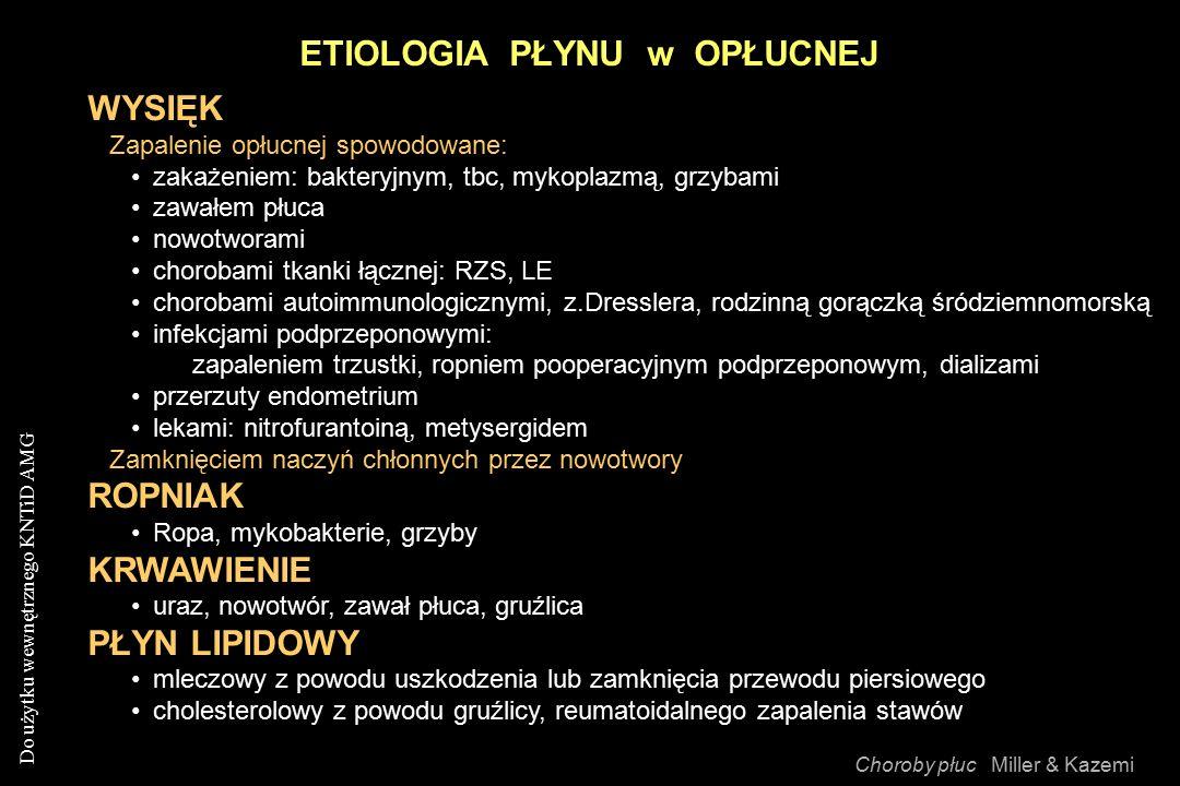 Do użytku wewnętrznego KNTiD AMG ETIOLOGIA PŁYNU w OPŁUCNEJ Choroby płuc Miller & Kazemi WYSIĘK Zapalenie opłucnej spowodowane: zakażeniem: bakteryjnym, tbc, mykoplazmą, grzybami zawałem płuca nowotworami chorobami tkanki łącznej: RZS, LE chorobami autoimmunologicznymi, z.Dresslera, rodzinną gorączką śródziemnomorską infekcjami podprzeponowymi: zapaleniem trzustki, ropniem pooperacyjnym podprzeponowym, dializami przerzuty endometrium lekami: nitrofurantoiną, metysergidem Zamknięciem naczyń chłonnych przez nowotwory ROPNIAK Ropa, mykobakterie, grzyby KRWAWIENIE uraz, nowotwór, zawał płuca, gruźlica PŁYN LIPIDOWY mleczowy z powodu uszkodzenia lub zamknięcia przewodu piersiowego cholesterolowy z powodu gruźlicy, reumatoidalnego zapalenia stawów