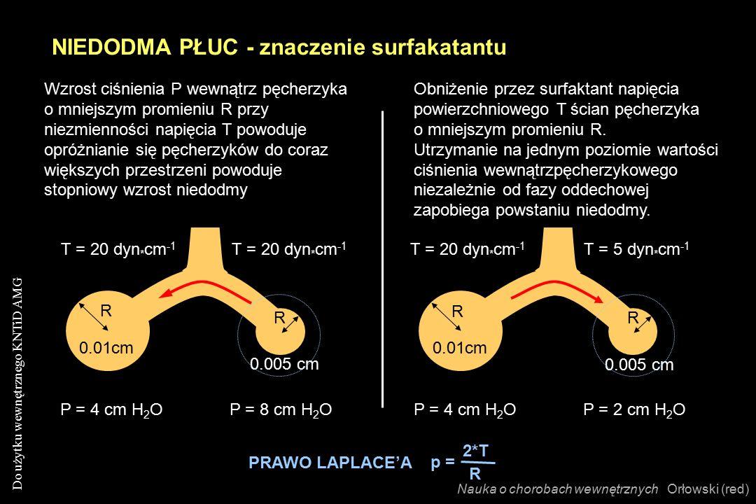 Do użytku wewnętrznego KNTiD AMG 0.005 cm P = 4 cm H 2 O T = 20 dyn * cm -1 0.01cm T = 20 dyn * cm -1 P = 8 cm H 2 O 0.005 cm T = 5 dyn * cm -1 T = 20 dyn * cm -1 Wzrost ciśnienia P wewnątrz pęcherzyka o mniejszym promieniu R przy niezmienności napięcia T powoduje opróżnianie się pęcherzyków do coraz większych przestrzeni powoduje stopniowy wzrost niedodmy Obniżenie przez surfaktant napięcia powierzchniowego T ścian pęcherzyka o mniejszym promieniu R.