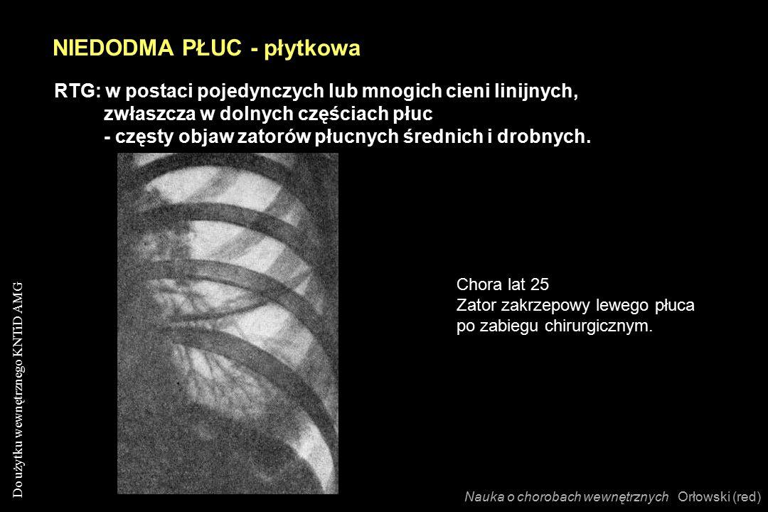 Do użytku wewnętrznego KNTiD AMG RTG: w postaci pojedynczych lub mnogich cieni linijnych, zwłaszcza w dolnych częściach płuc - częsty objaw zatorów płucnych średnich i drobnych.