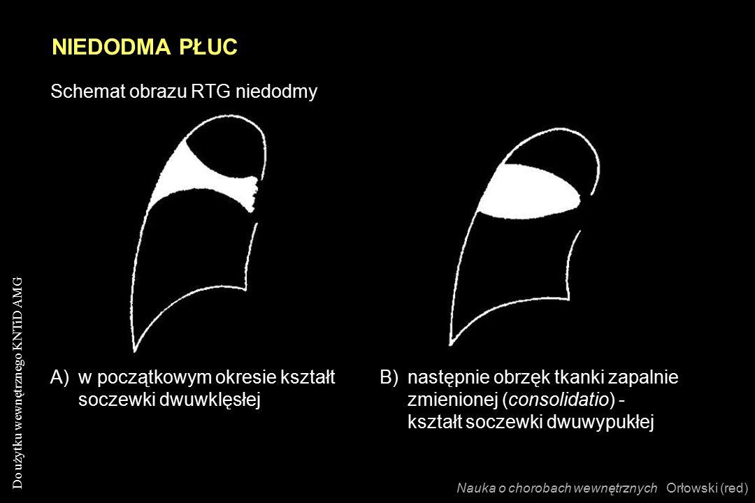 Do użytku wewnętrznego KNTiD AMG NIEDODMA PŁUC Nauka o chorobach wewnętrznych Orłowski (red) Schemat obrazu RTG niedodmy A)w początkowym okresie kształt soczewki dwuwklęsłej B)następnie obrzęk tkanki zapalnie zmienionej (consolidatio) - kształt soczewki dwuwypukłej