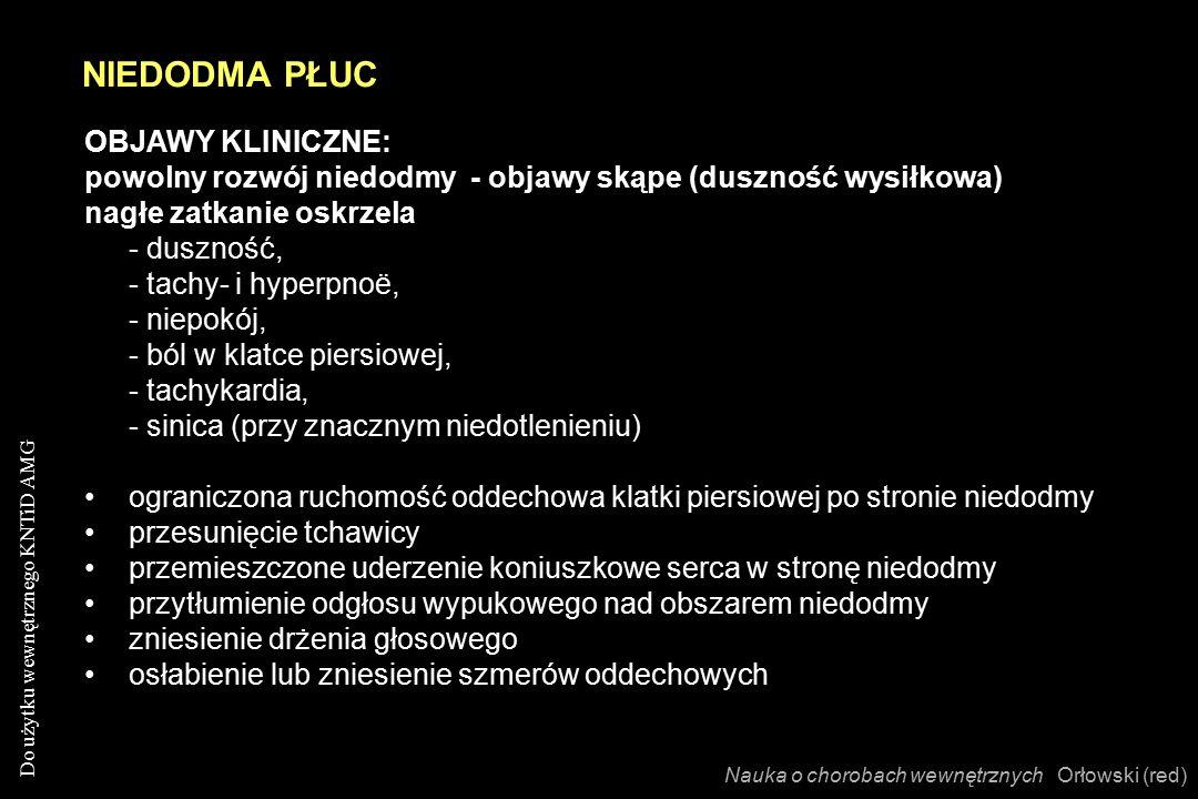 Do użytku wewnętrznego KNTiD AMG OBJAWY KLINICZNE: powolny rozwój niedodmy - objawy skąpe (duszność wysiłkowa) nagłe zatkanie oskrzela - duszność, - tachy- i hyperpnoë, - niepokój, - ból w klatce piersiowej, - tachykardia, - sinica (przy znacznym niedotlenieniu) ograniczona ruchomość oddechowa klatki piersiowej po stronie niedodmy przesunięcie tchawicy przemieszczone uderzenie koniuszkowe serca w stronę niedodmy przytłumienie odgłosu wypukowego nad obszarem niedodmy zniesienie drżenia głosowego osłabienie lub zniesienie szmerów oddechowych NIEDODMA PŁUC Nauka o chorobach wewnętrznych Orłowski (red)