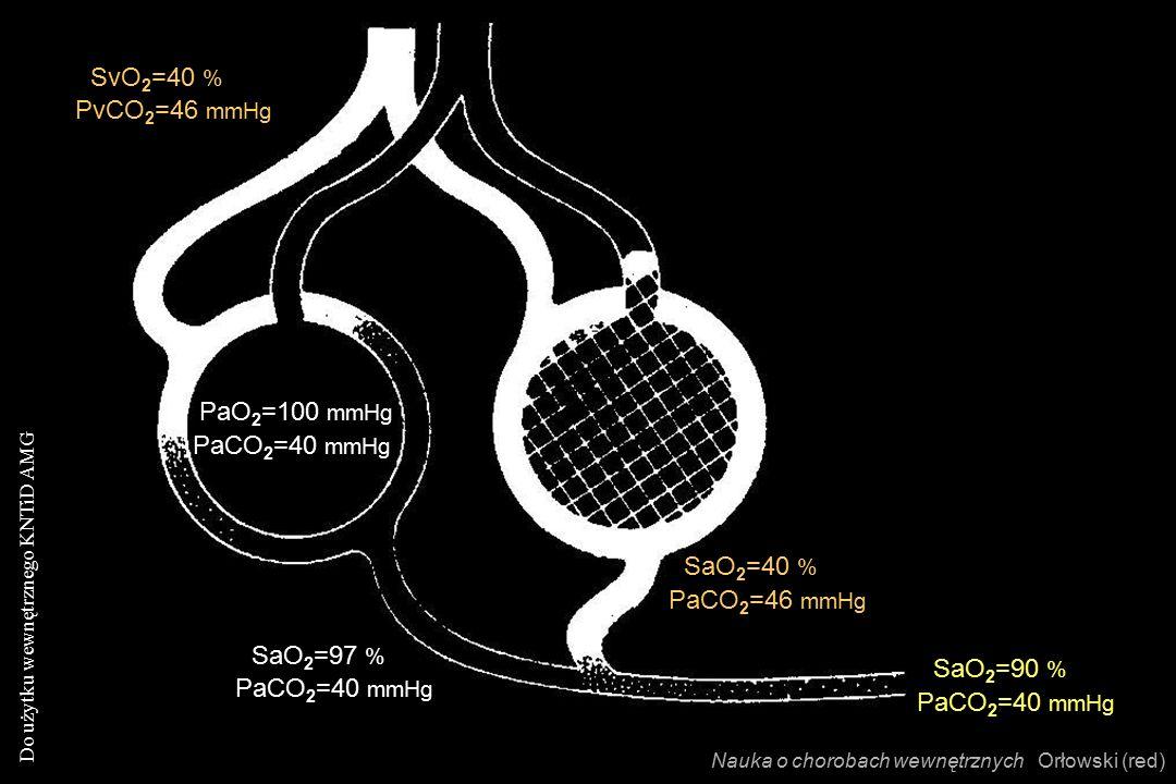 Do użytku wewnętrznego KNTiD AMG Nauka o chorobach wewnętrznych Orłowski (red) SvO 2 =40 % PvCO 2 =46 mmHg PaO 2 =100 mmHg PaCO 2 =40 mmHg SaO 2 =97 % PaCO 2 =40 mmHg SaO 2 =40 % PaCO 2 =46 mmHg SaO 2 =90 % PaCO 2 =40 mmHg