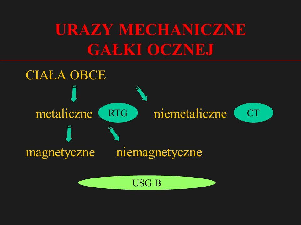URAZY MECHANICZNE GAŁKI OCZNEJ CIAŁA OBCE metaliczne niemetaliczne magnetyczne niemagnetyczne RTGCT USG B