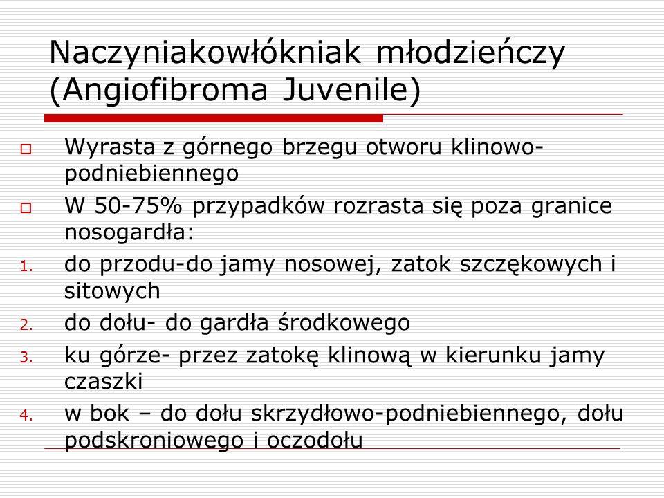 Naczyniakowłókniak młodzieńczy (Angiofibroma Juvenile)  Wyrasta z górnego brzegu otworu klinowo- podniebiennego  W 50-75% przypadków rozrasta się poza granice nosogardła: 1.