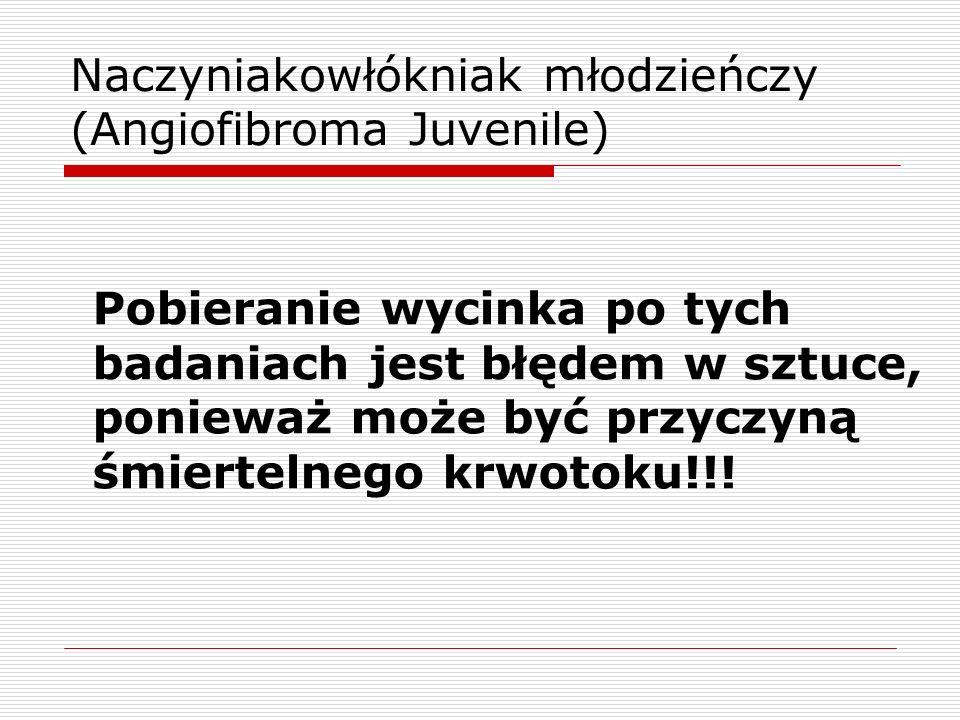Naczyniakowłókniak młodzieńczy (Angiofibroma Juvenile) Pobieranie wycinka po tych badaniach jest błędem w sztuce, ponieważ może być przyczyną śmiertelnego krwotoku!!!