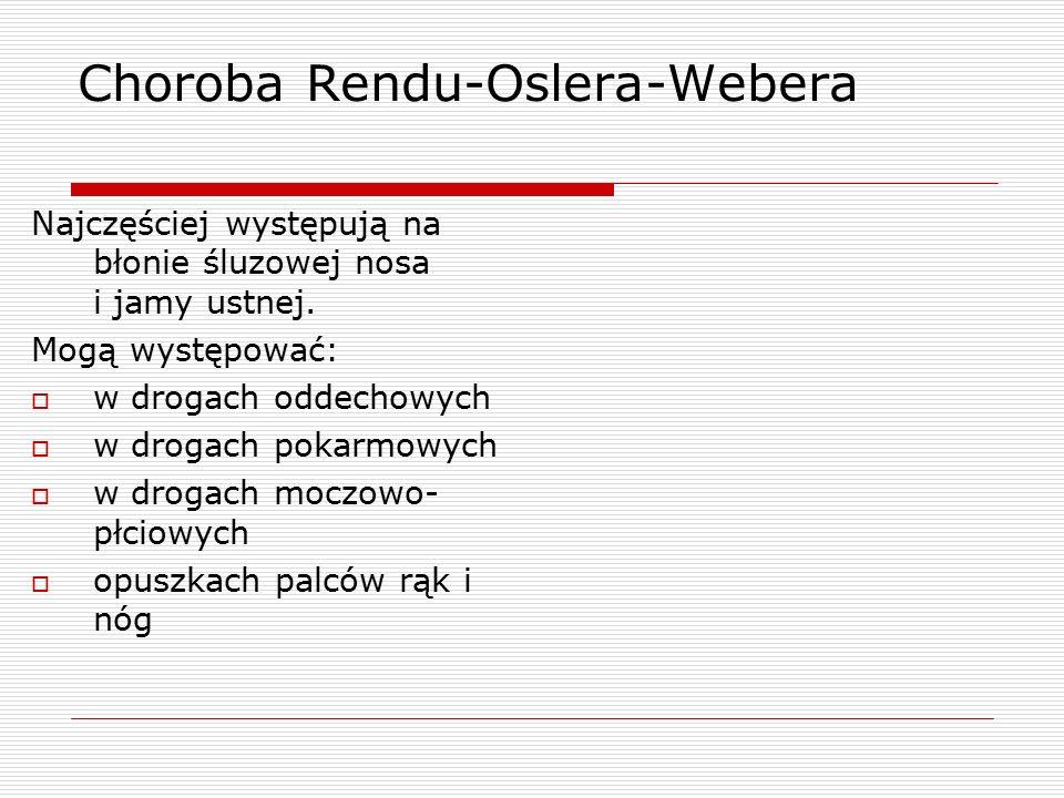 Choroba Rendu-Oslera-Webera Najczęściej występują na błonie śluzowej nosa i jamy ustnej.