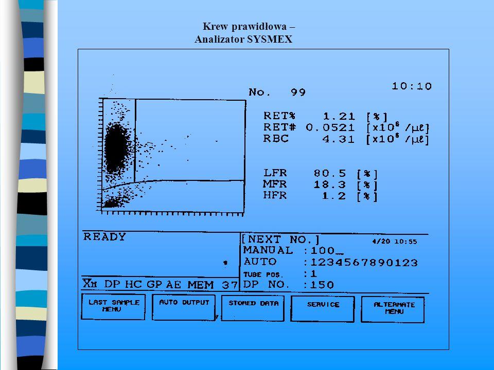 Krew prawidłowa – Analizator SYSMEX