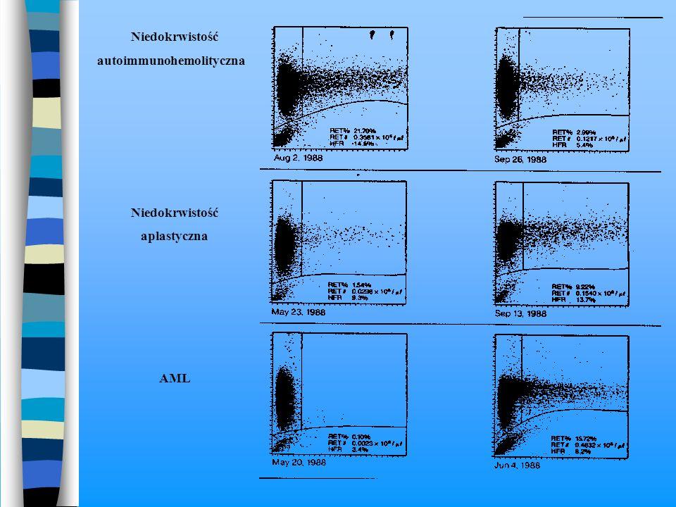 Niedokrwistość autoimmunohemolityczna Niedokrwistość aplastyczna AML