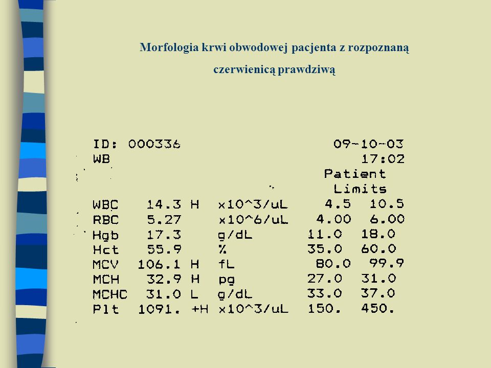 Morfologia krwi obwodowej pacjenta z rozpoznaną czerwienicą prawdziwą