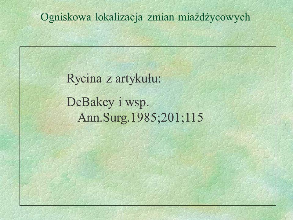 Ogniskowa lokalizacja zmian miażdżycowych Rycina z artykułu: DeBakey i wsp. Ann.Surg.1985;201;115
