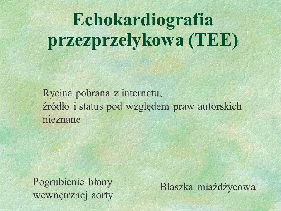 Echokardiografia przezprzełykowa (TEE) Pogrubienie błony wewnętrznej aorty Blaszka miażdżycowa Rycina pobrana z internetu, źródło i status pod względe