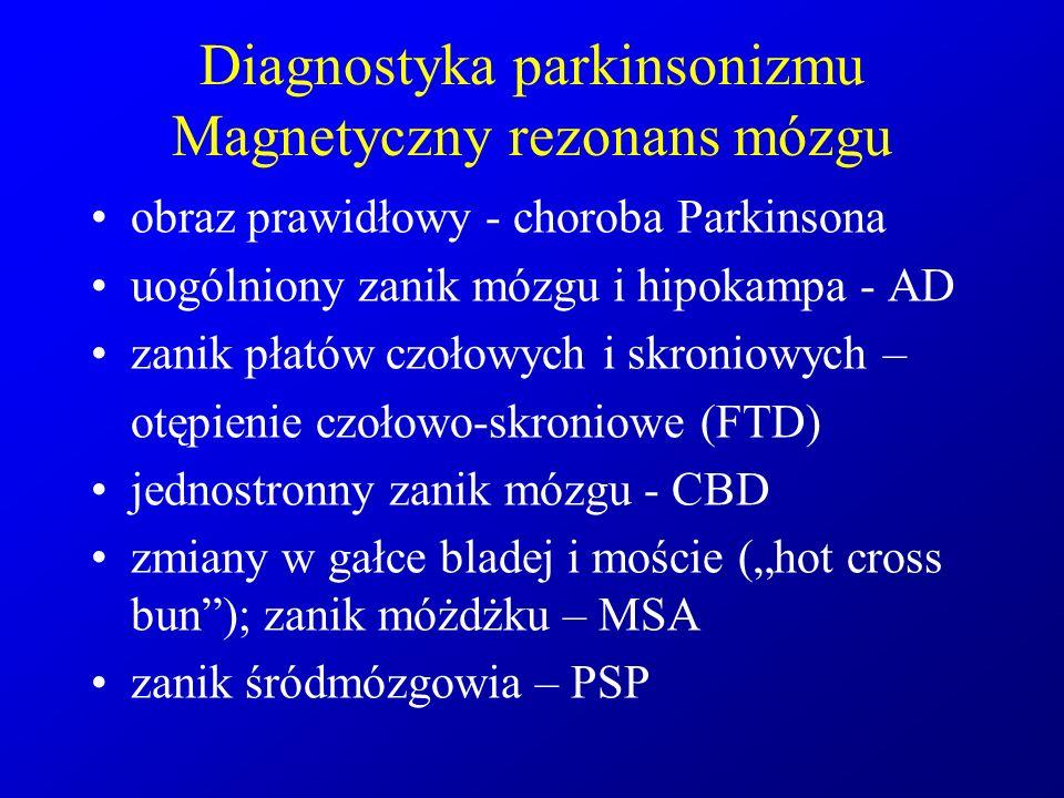 Diagnostyka parkinsonizmu Magnetyczny rezonans mózgu obraz prawidłowy - choroba Parkinsona uogólniony zanik mózgu i hipokampa - AD zanik płatów czołow