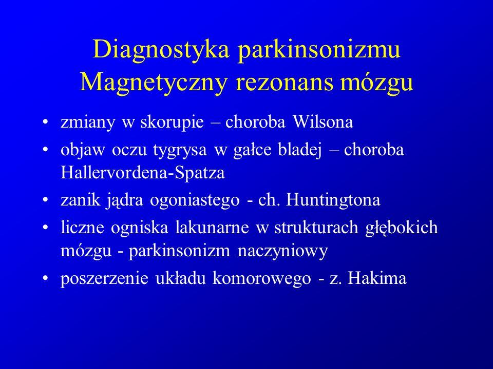 Diagnostyka parkinsonizmu Magnetyczny rezonans mózgu zmiany w skorupie – choroba Wilsona objaw oczu tygrysa w gałce bladej – choroba Hallervordena-Spa