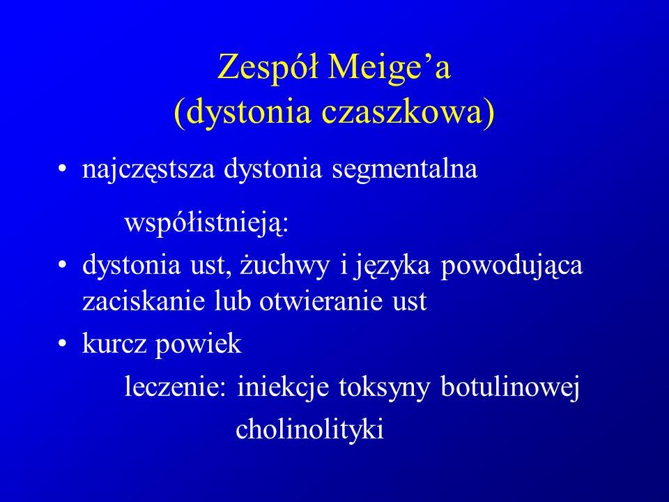 Zespół Meige'a (dystonia czaszkowa) najczęstsza dystonia segmentalna współistnieją: dystonia ust, żuchwy i języka powodująca zaciskanie lub otwieranie