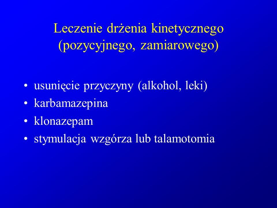 Leczenie drżenia kinetycznego (pozycyjnego, zamiarowego) usunięcie przyczyny (alkohol, leki) karbamazepina klonazepam stymulacja wzgórza lub talamotom