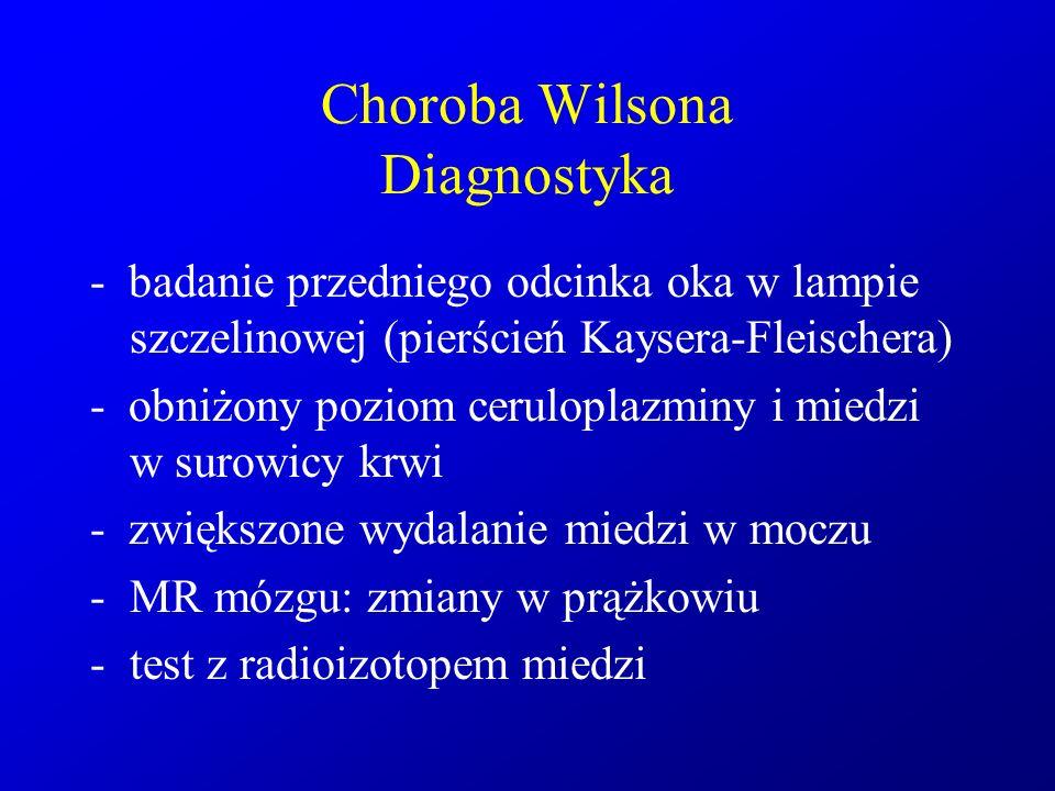 Choroba Wilsona Diagnostyka - badanie przedniego odcinka oka w lampie szczelinowej (pierścień Kaysera-Fleischera) - obniżony poziom ceruloplazminy i m