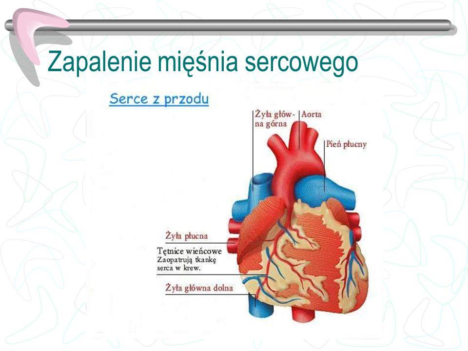 Zapalenie mięśnia sercowego