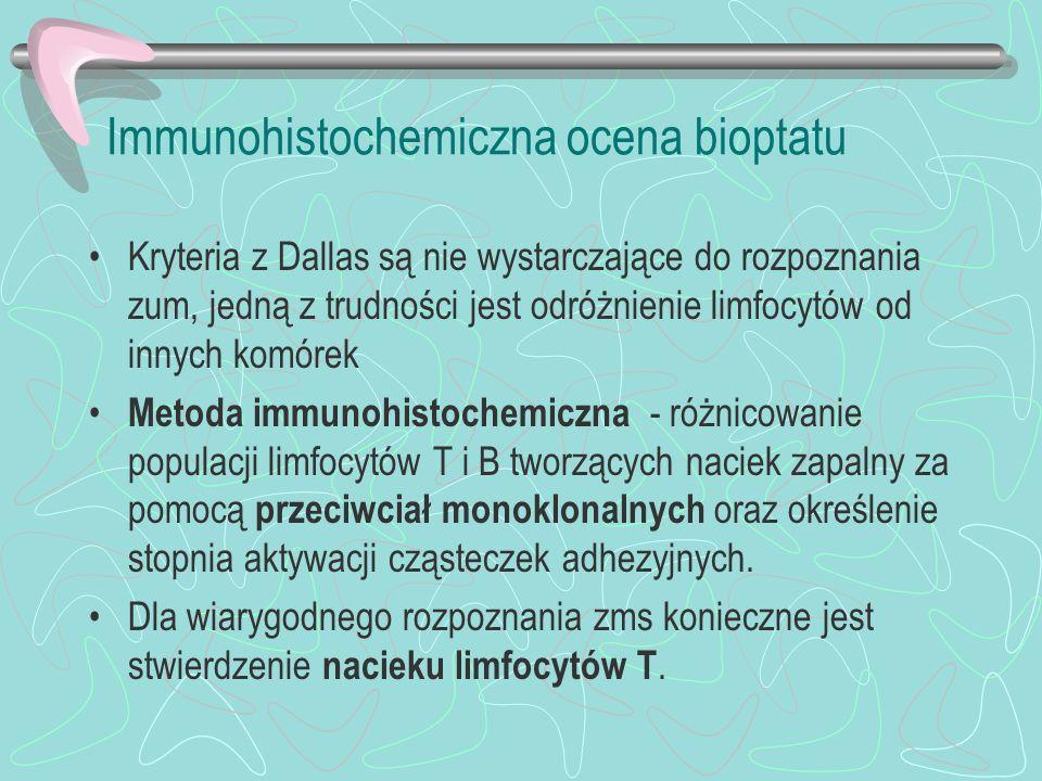 Immunohistochemiczna ocena bioptatu Kryteria z Dallas są nie wystarczające do rozpoznania zum, jedną z trudności jest odróżnienie limfocytów od innych