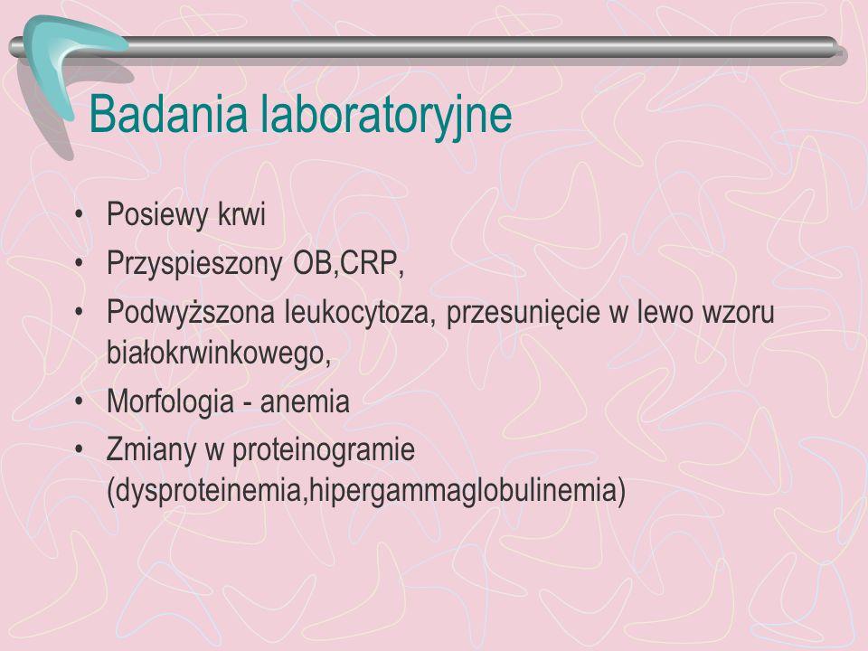 Badania laboratoryjne Posiewy krwi Przyspieszony OB,CRP, Podwyższona leukocytoza, przesunięcie w lewo wzoru białokrwinkowego, Morfologia - anemia Zmia