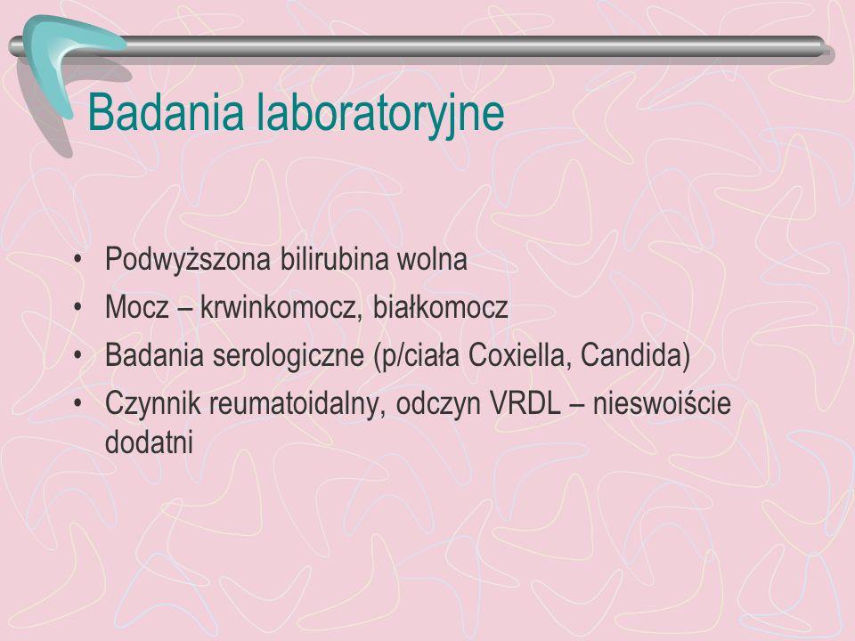Badania laboratoryjne Podwyższona bilirubina wolna Mocz – krwinkomocz, białkomocz Badania serologiczne (p/ciała Coxiella, Candida) Czynnik reumatoidal