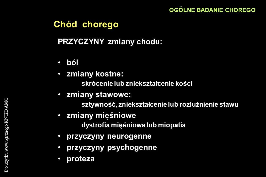 Do użytku wewnętrznego KNTiD AMG Chód chorego PRZYCZYNY zmiany chodu: ból zmiany kostne: skrócenie lub zniekształcenie kości zmiany stawowe: sztywność